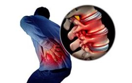 disc bulge sciatica featured